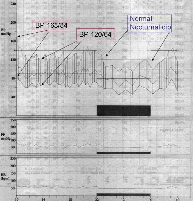 ambulatorty blood pressure measurement
