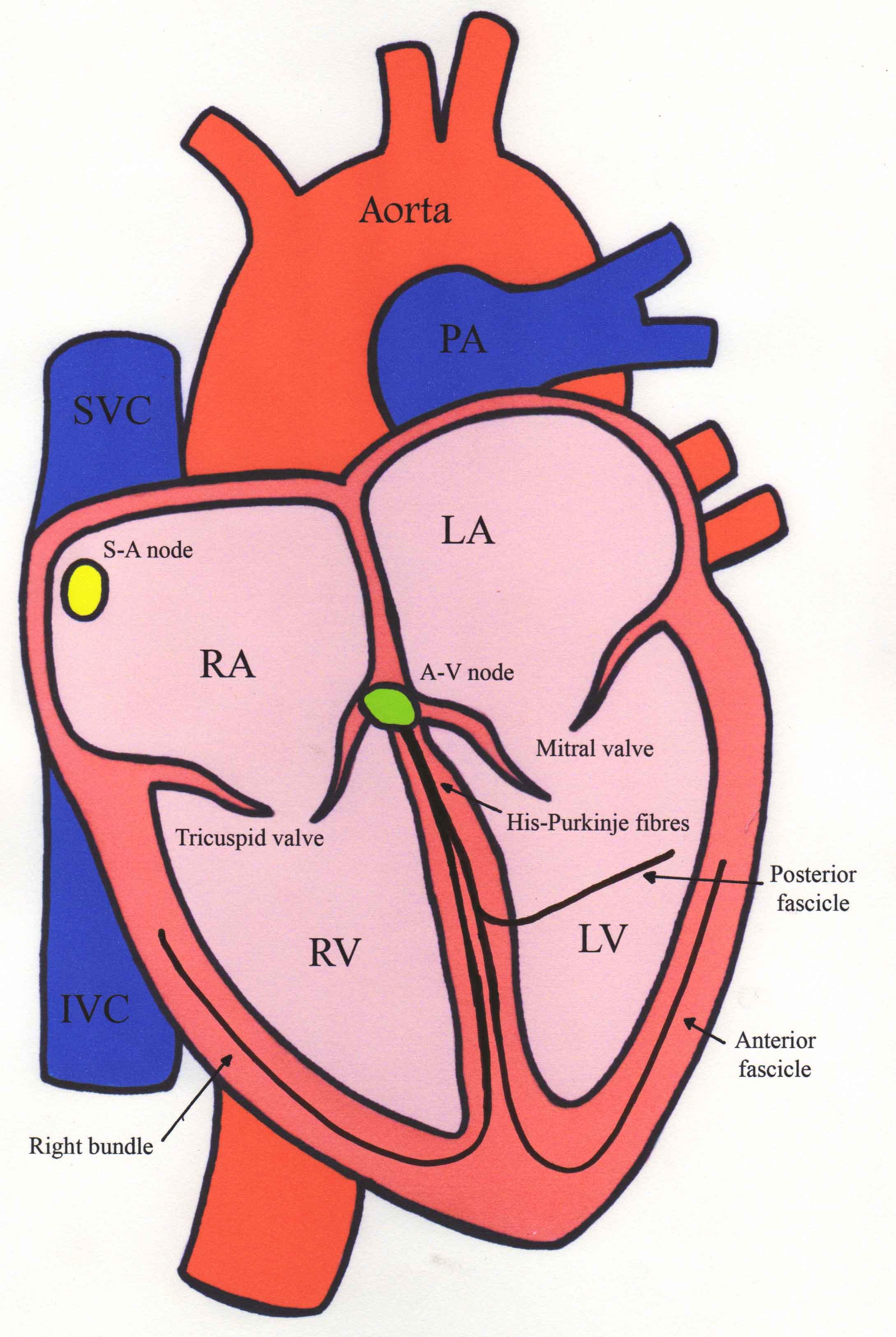 Heart diagram svt electrical work wiring diagram supraventricular tachycardia rh rbain org uk heart diagram sheet heart diagram song ccuart Gallery