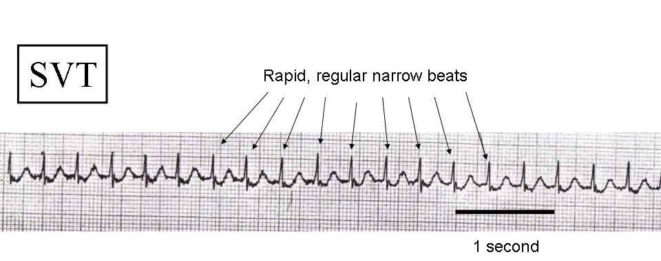What Is Svt >> Supraventricular Tachycardia